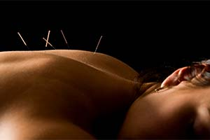 Acupuncture Anna Maria Island